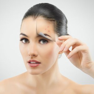 wpid-how-do-i-get-rid-of-blackheads.jpg